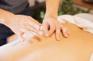The Benefits of Dry Needling
